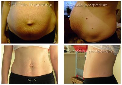 diastasis recti after twin pregnancy #1