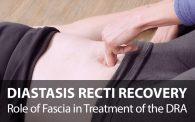 Diastasis Recti treatment and recovery